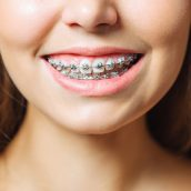 The most popular adult braces options