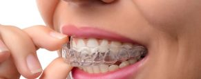 Will Invisalign Straighten Your Teeth?